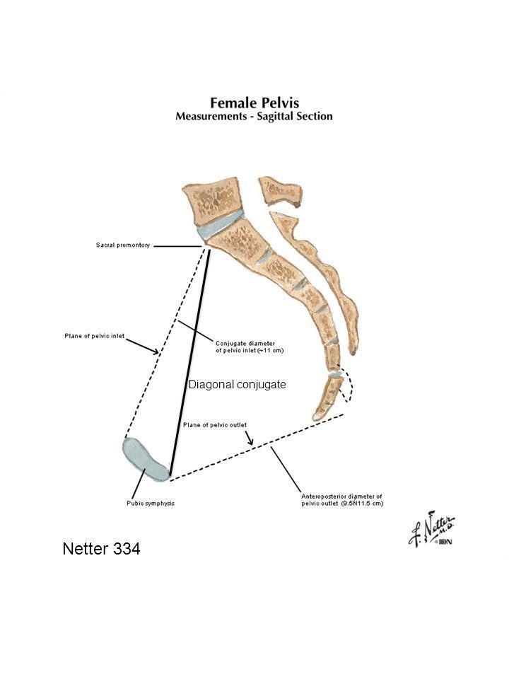 Netter 334 View of female pelvis.