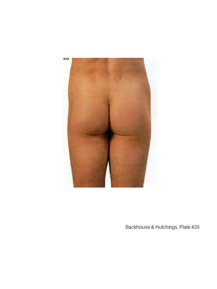 Seen from posterior, perineum a little cleft from the proximal end of the thigh. To get a good view of the perineum, you must abduct the thighs. Perineum is covered by skin.