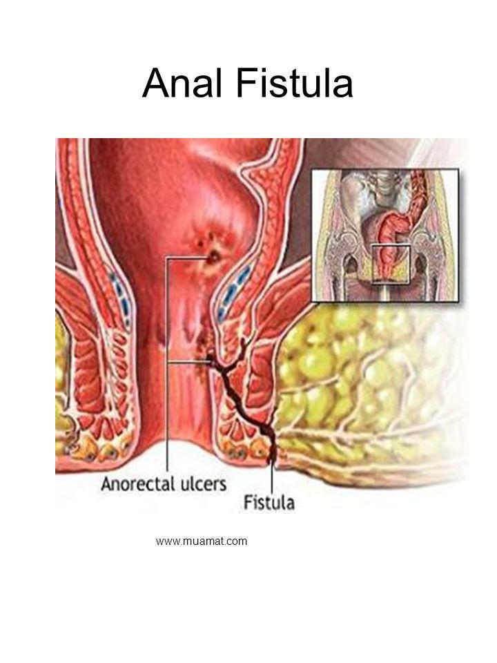 Anal Fistula Fistula – abnormal communication between two cavities. Begins as abrasion to anal canal. Often becomes infected, may form an abcess.