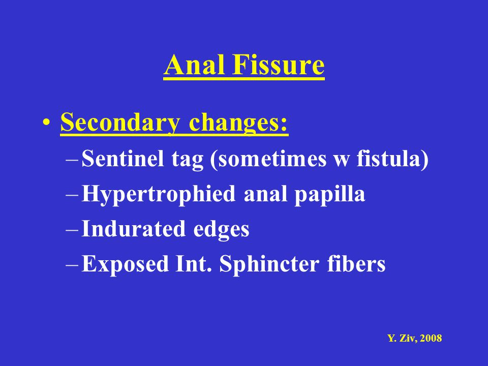 Anal Fissure Secondary changes: Sentinel tag (sometimes w fistula)