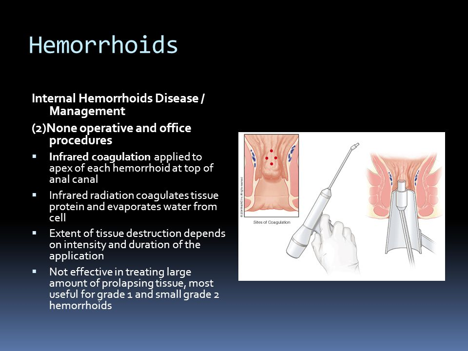 Hemorrhoids Internal Hemorrhoids Disease / Management