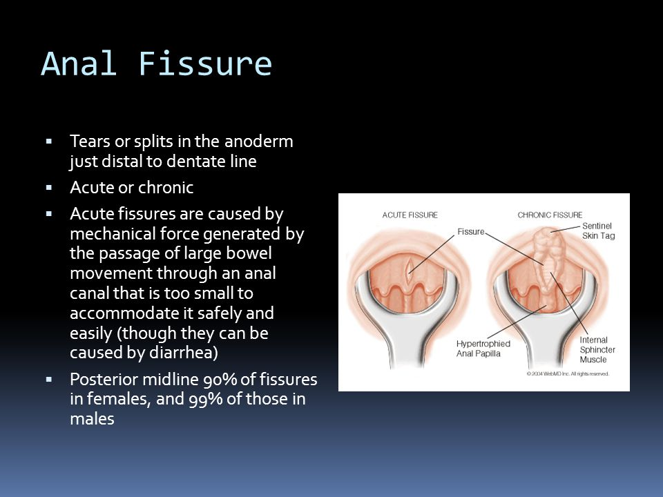 Anal Fissure Tears or splits in the anoderm just distal to dentate line. Acute or chronic.