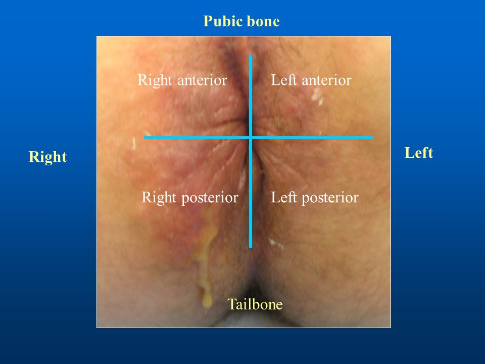 Pubic bone Right anterior Left anterior Left Right Right posterior Left posterior Tailbone