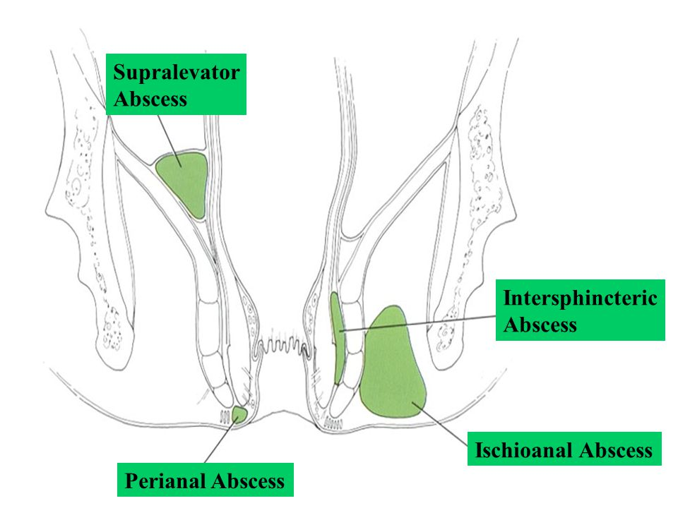 Supralevator Abscess Intersphincteric Abscess Ischioanal Abscess Perianal Abscess