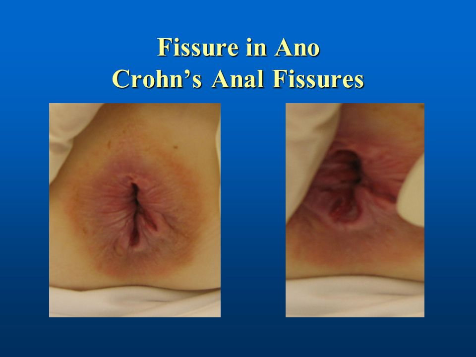 Fissure in Ano Crohn's Anal Fissures