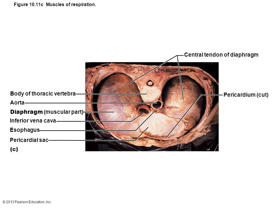 Figure 10.11c Muscles of respiration.
