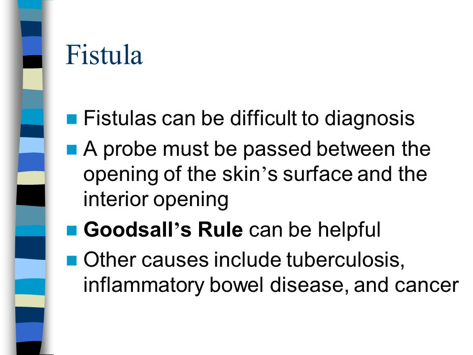 Fistula Fistulas can be difficult to diagnosis