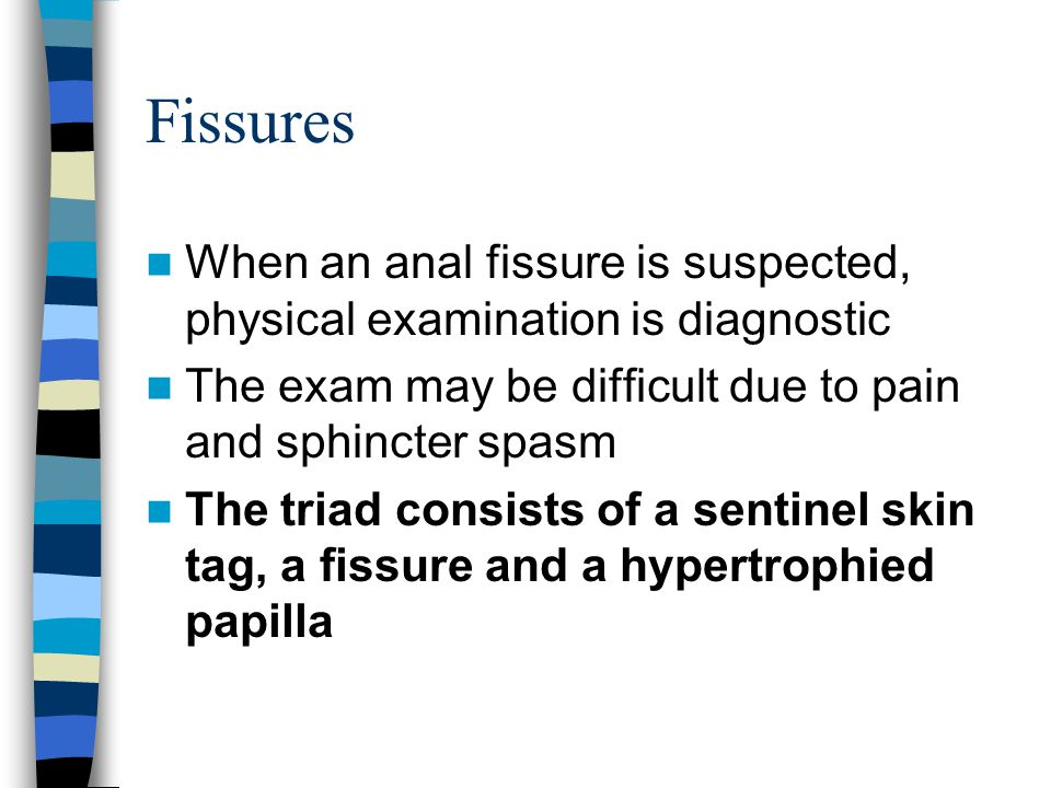 Fissures When an anal fissure is suspected, physical examination is diagnostic. The exam may be difficult due to pain and sphincter spasm.