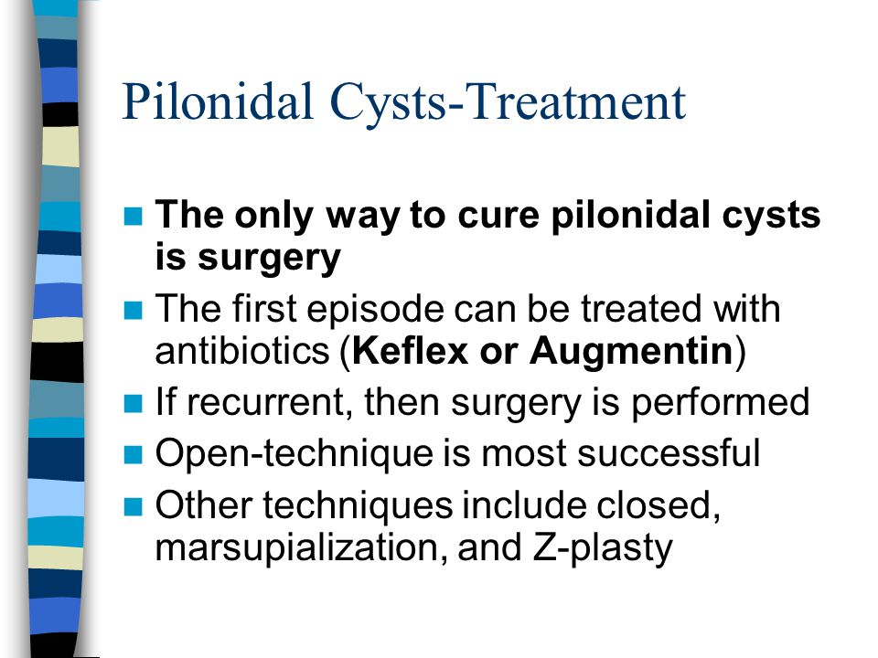 Pilonidal Cysts-Treatment