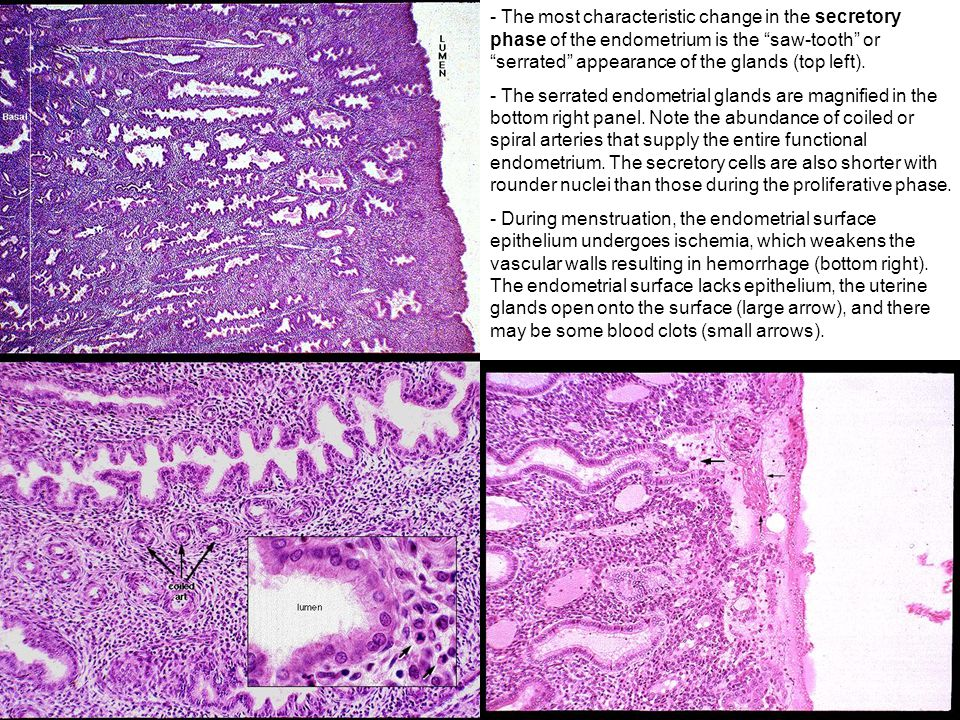 The most characteristic change in the secretory phase of the endometrium is the saw-tooth or serrated appearance of the glands (top left).
