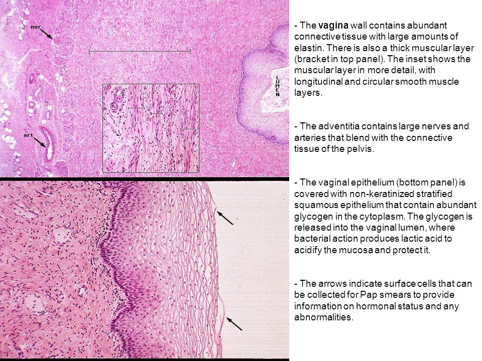 The vagina wall contains abundant connective tissue with large amounts of elastin. There is also a thick muscular layer (bracket in top panel). The inset shows the muscular layer in more detail, with longitudinal and circular smooth muscle layers.