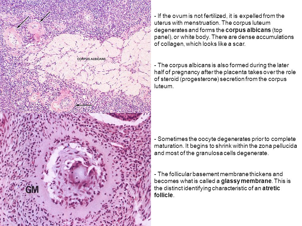 If the ovum is not fertilized, it is expelled from the uterus with menstruation. The corpus luteum degenerates and forms the corpus albicans (top panel), or white body. There are dense accumulations of collagen, which looks like a scar.