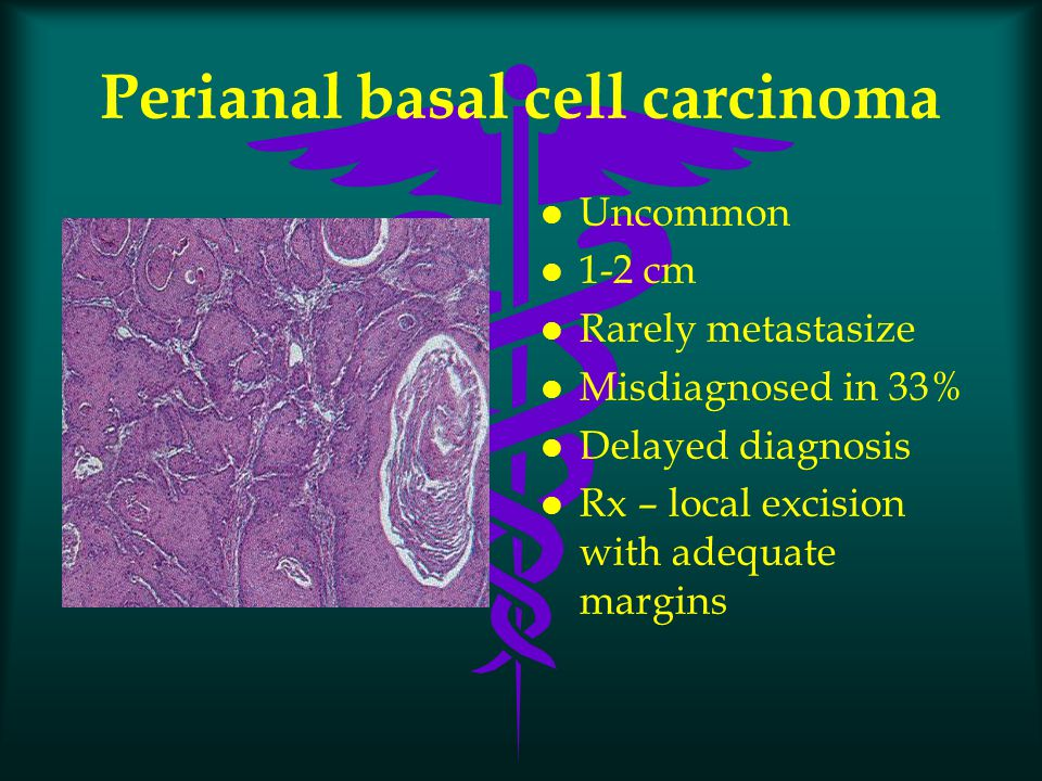 Perianal basal cell carcinoma