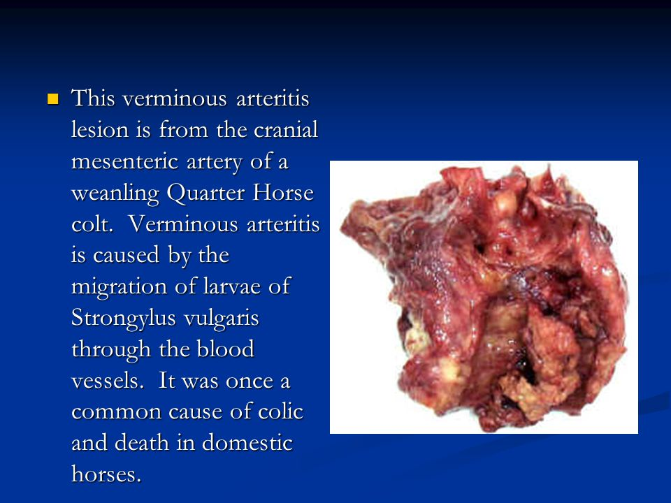 This verminous arteritis lesion is from the cranial mesenteric artery of a weanling Quarter Horse colt. Verminous arteritis is caused by the migration of larvae of Strongylus vulgaris through the blood vessels. It was once a common cause of colic and death in domestic horses.