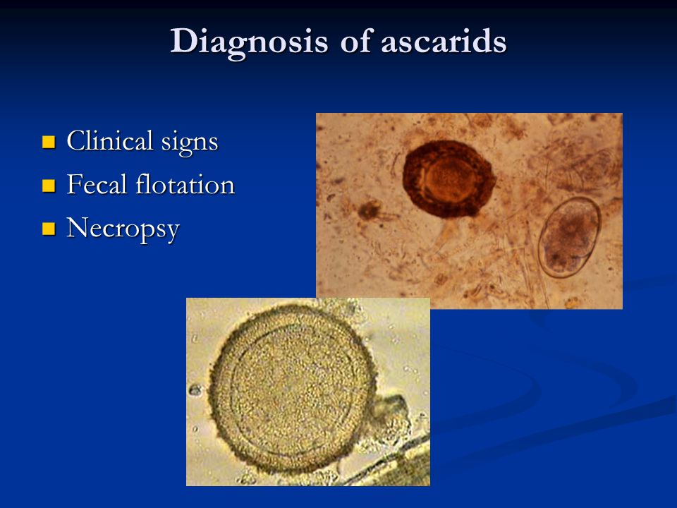 Diagnosis of ascarids Clinical signs Fecal flotation Necropsy