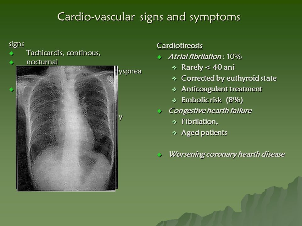 Cardio-vascular signs and symptoms
