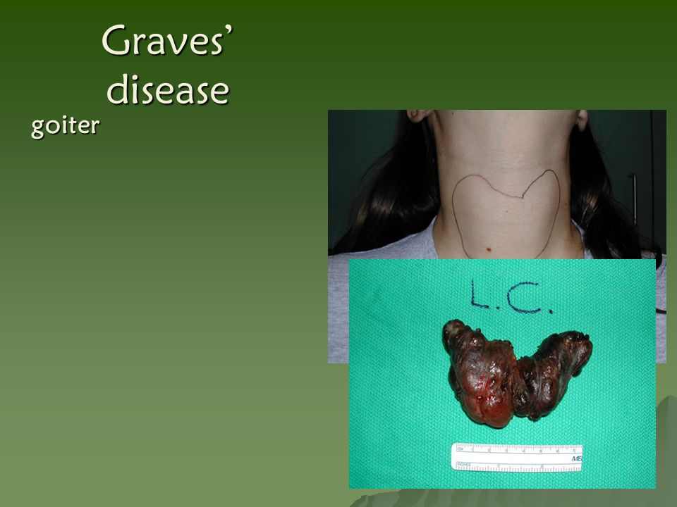 Graves' disease goiter