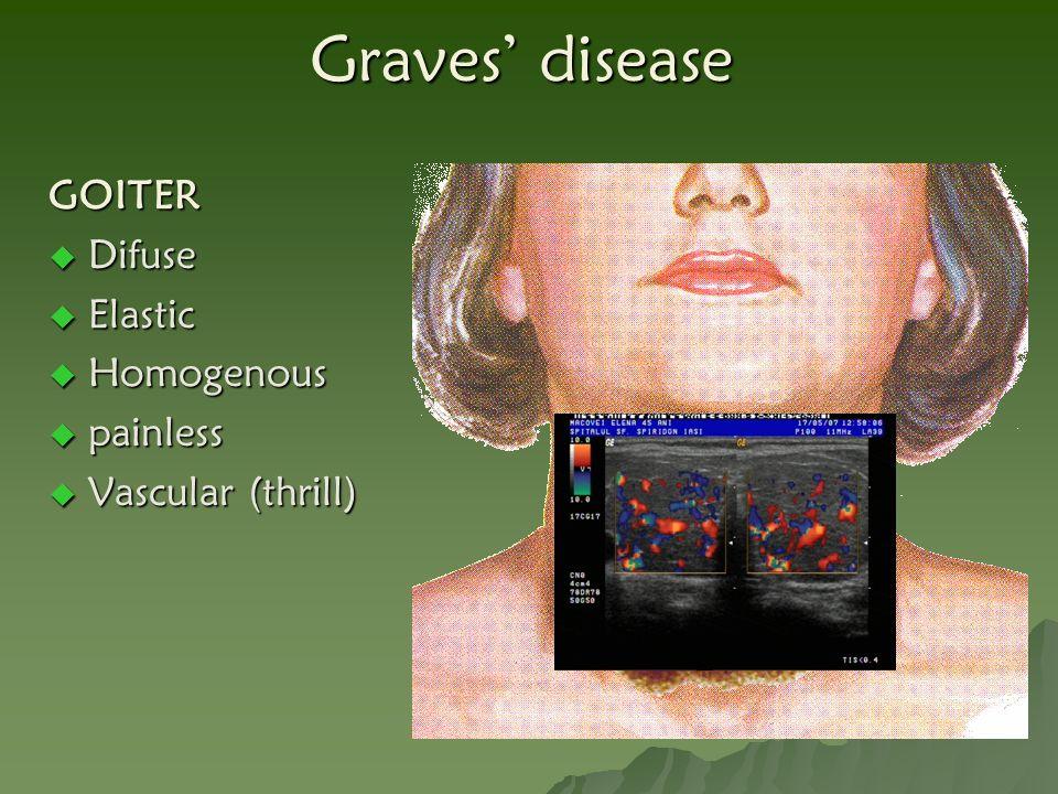Graves' disease GOITER Difuse Elastic Homogenous painless