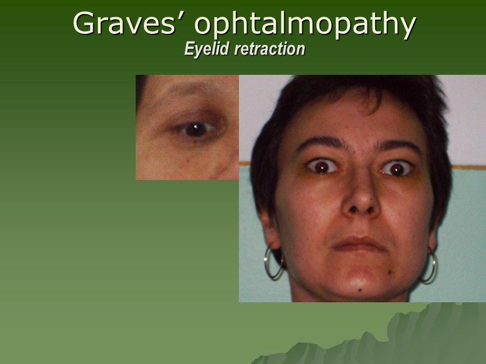 Graves' ophtalmopathy