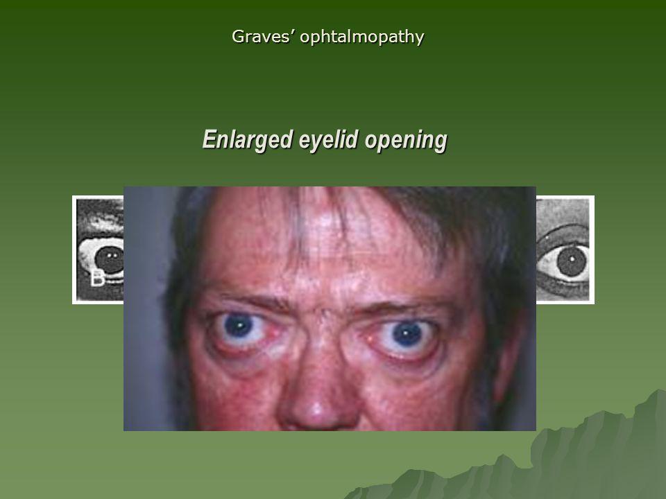 Enlarged eyelid opening