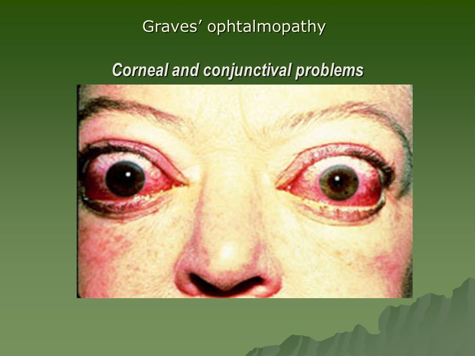 Corneal and conjunctival problems