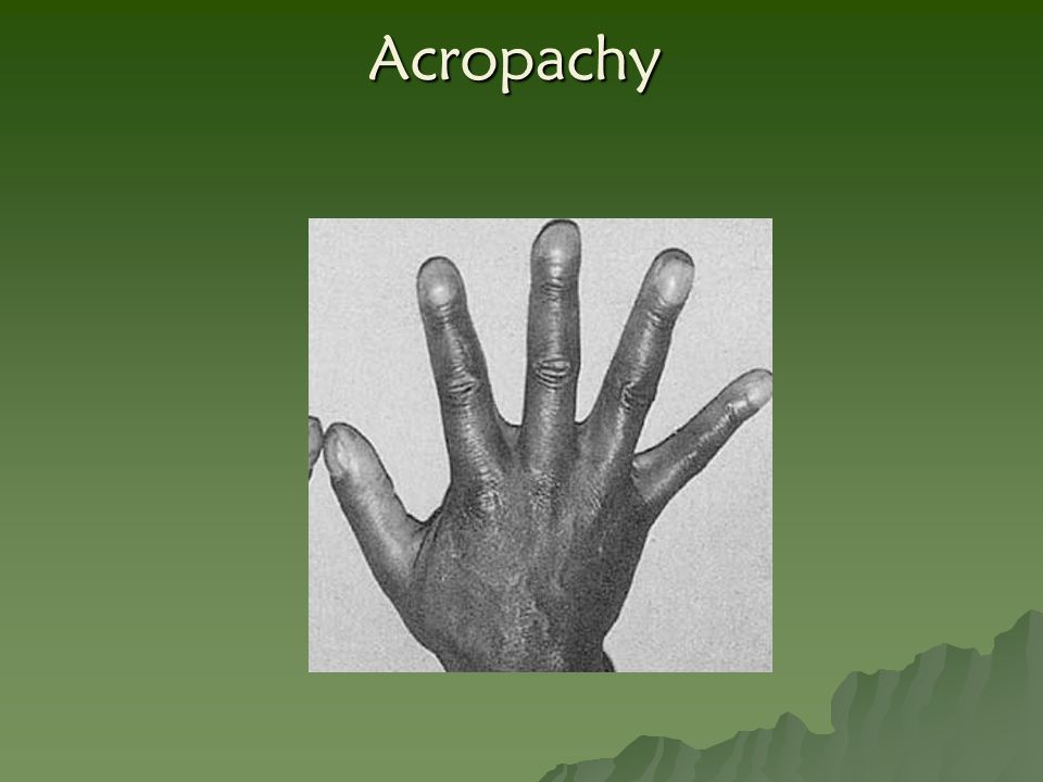 Acropachy