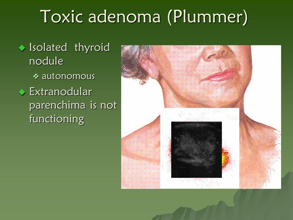 Toxic adenoma (Plummer)