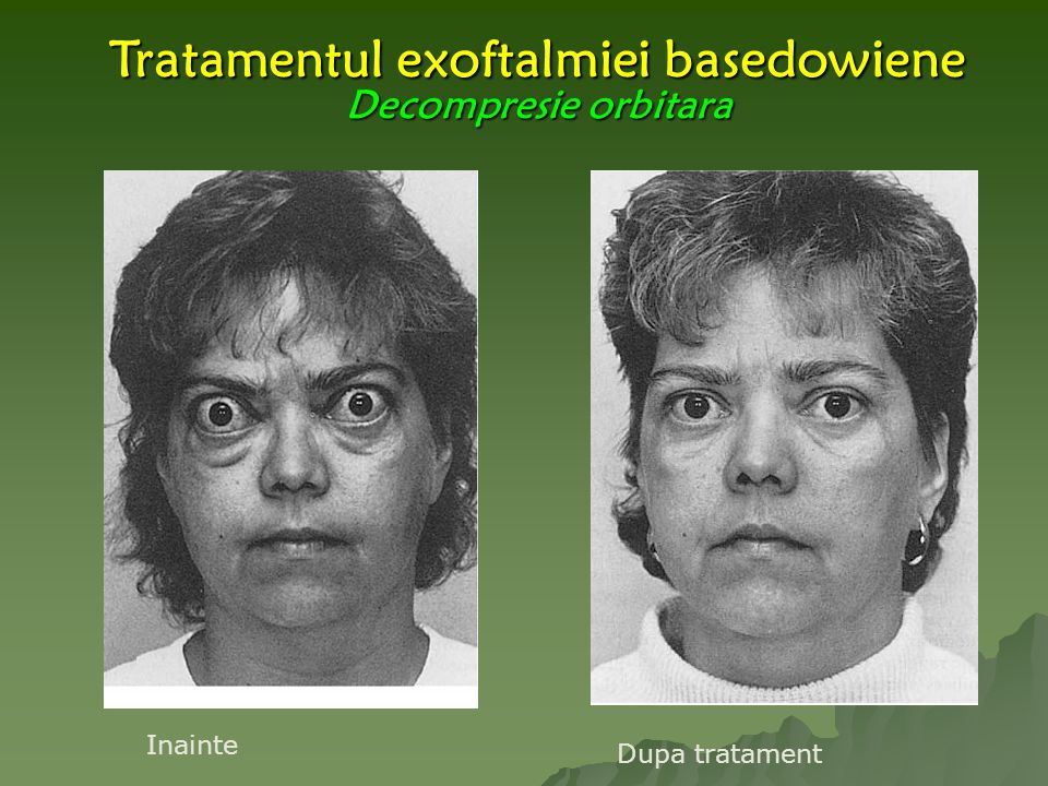 Tratamentul exoftalmiei basedowiene