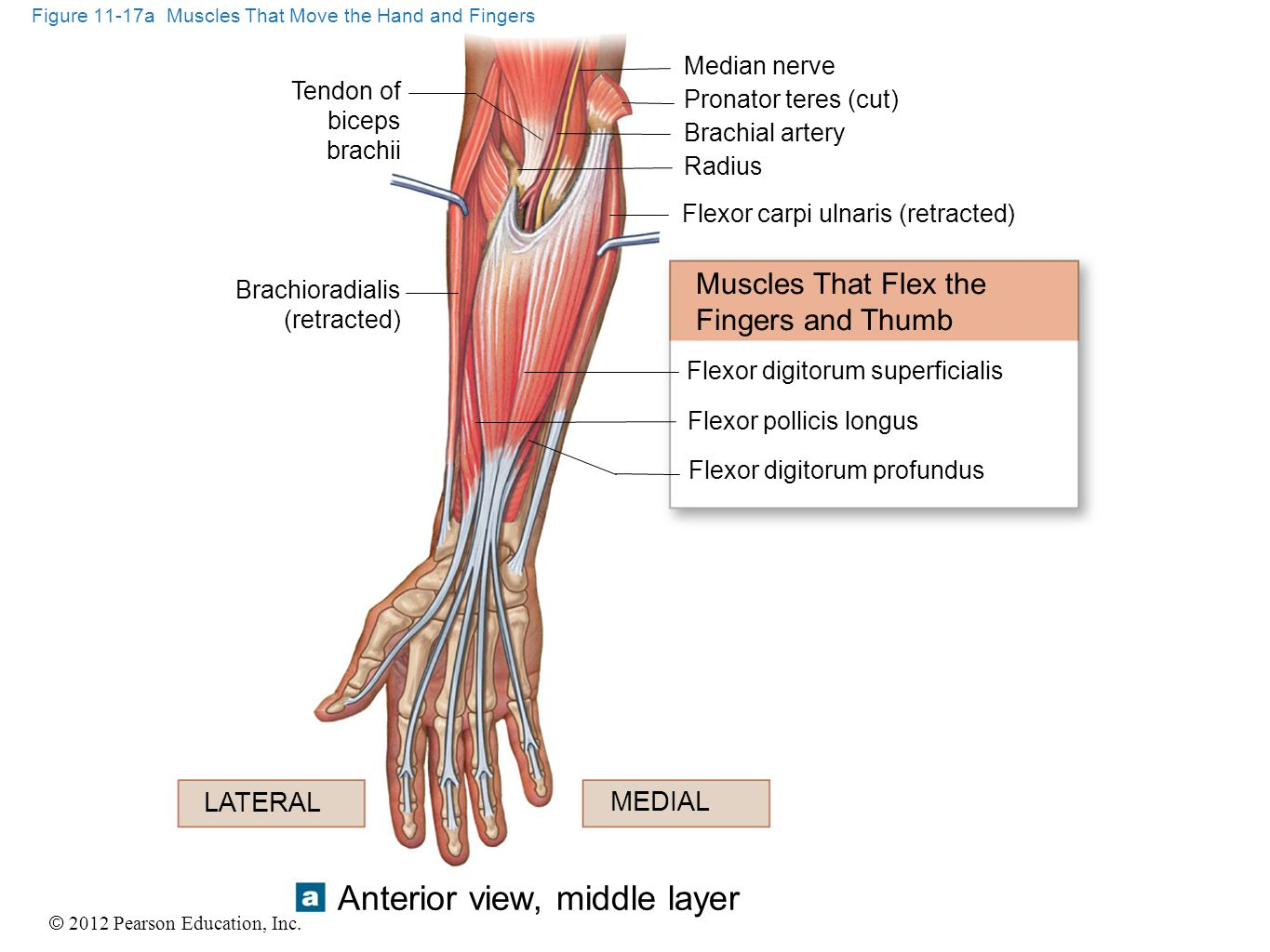 Figure 11-17a Muscles That Move the Hand and Fingers