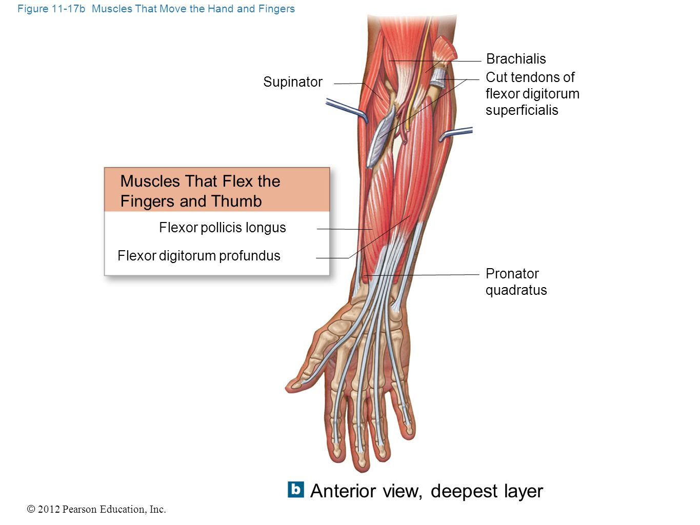 Figure 11-17b Muscles That Move the Hand and Fingers
