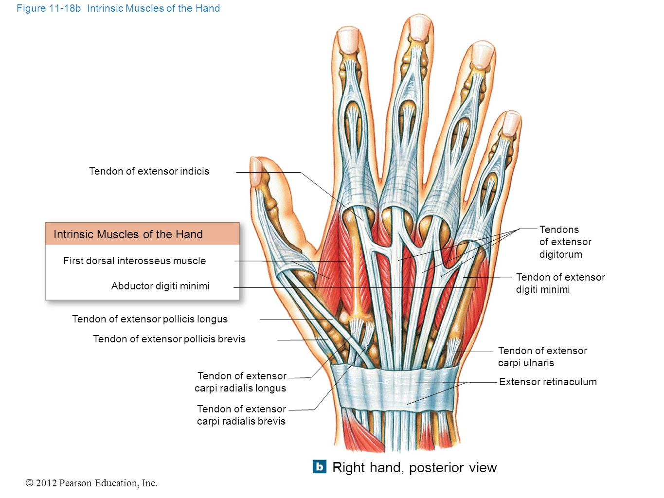 Figure 11-18b Intrinsic Muscles of the Hand