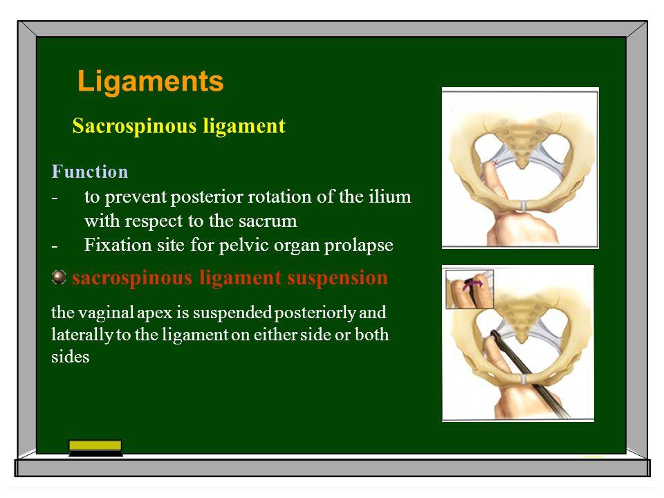 Ligaments Sacrospinous ligament sacrospinous ligament suspension