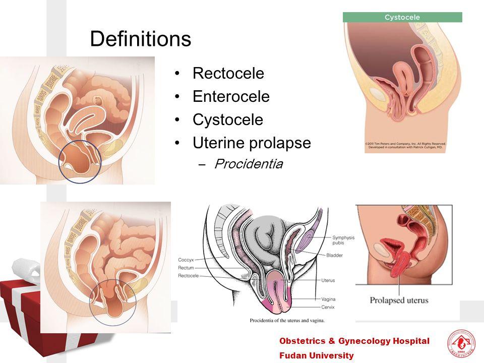 Definitions Rectocele Enterocele Cystocele Uterine prolapse