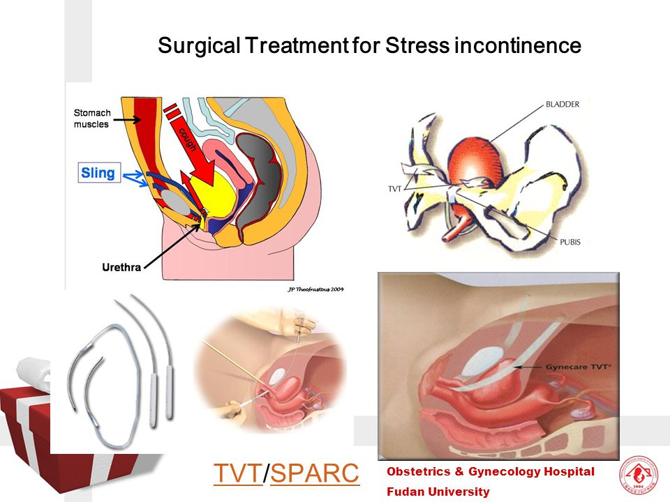 Surgical Treatment for Stress incontinence