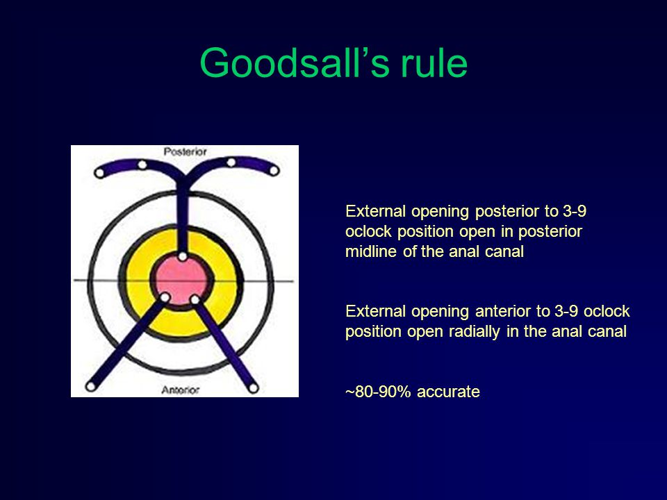 Goodsall's rule External opening posterior to 3-9 oclock position open in posterior midline of the anal canal.