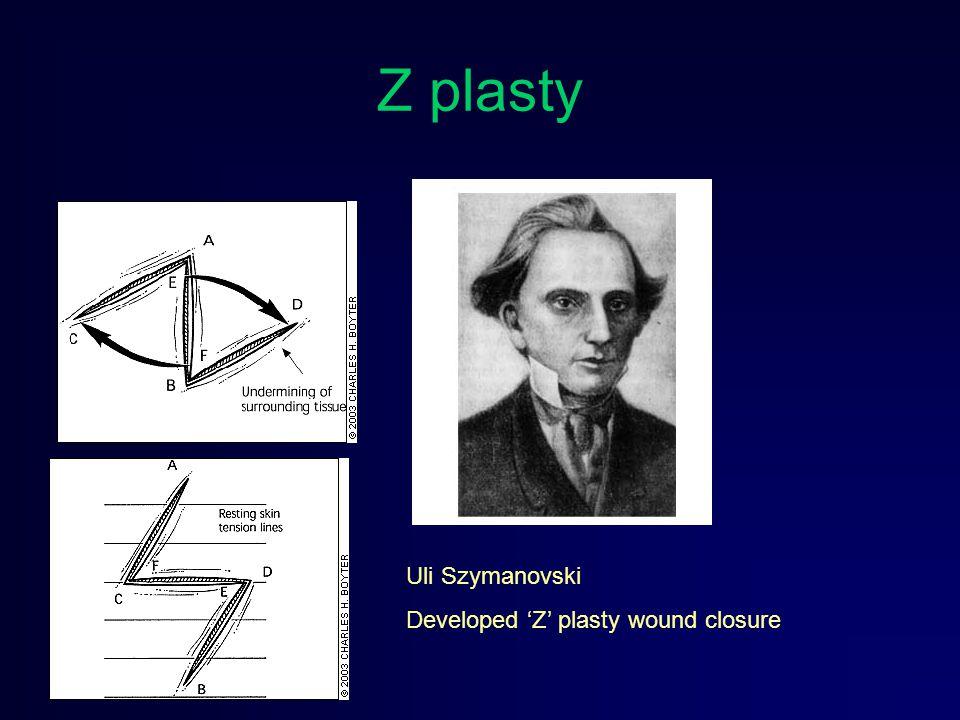 Z plasty Uli Szymanovski Developed 'Z' plasty wound closure