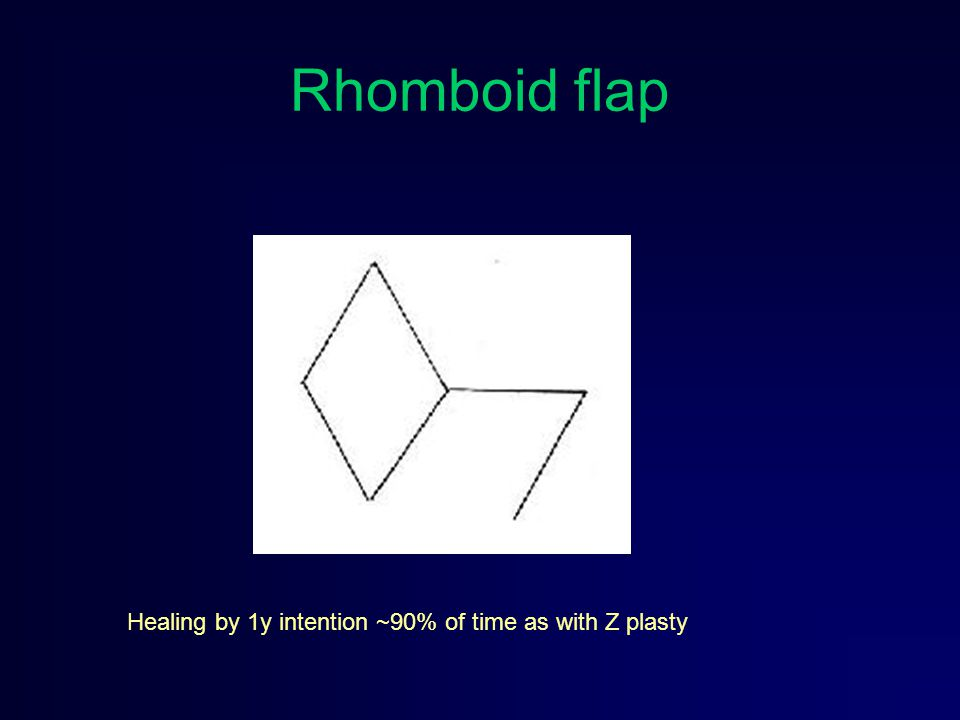 Rhomboid flap Healing by 1y intention ~90% of time as with Z plasty