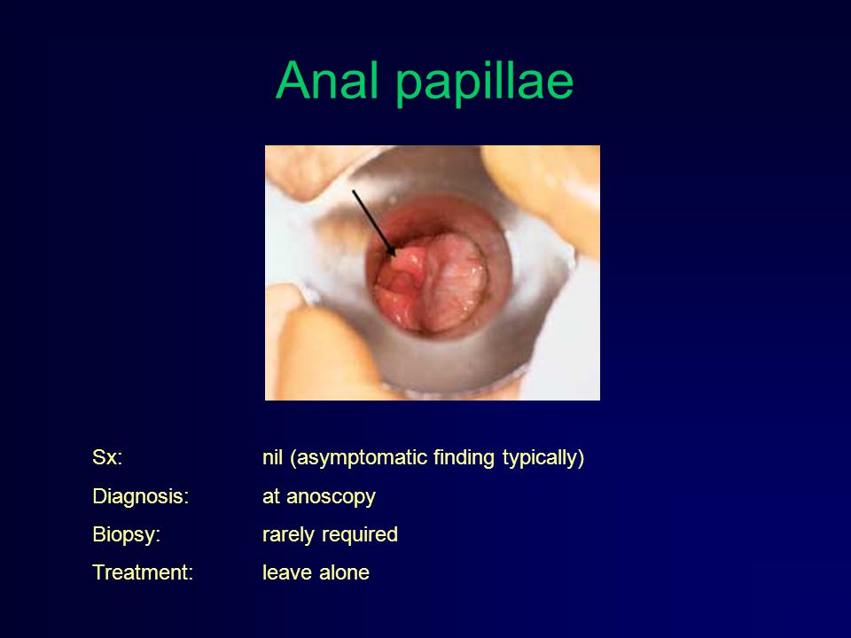 Anal papillae Sx: nil (asymptomatic finding typically)