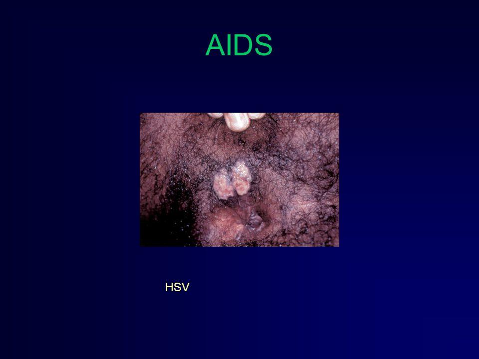 AIDS HSV