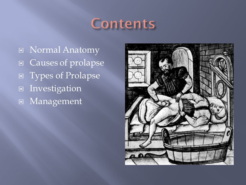 Contents Normal Anatomy Causes of prolapse Types of Prolapse