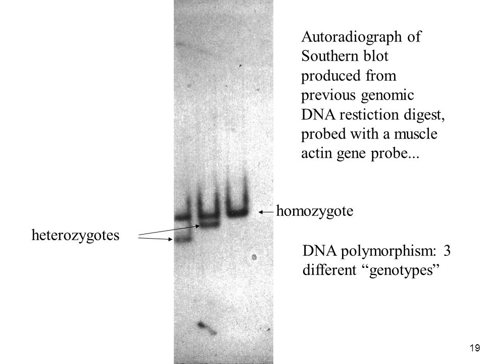 Autoradiograph of Southern blot produced from previous genomic DNA restiction digest, probed with a muscle actin gene probe...