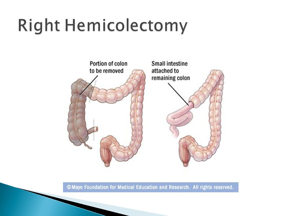 Right Hemicolectomy