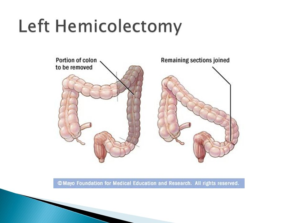 Left Hemicolectomy