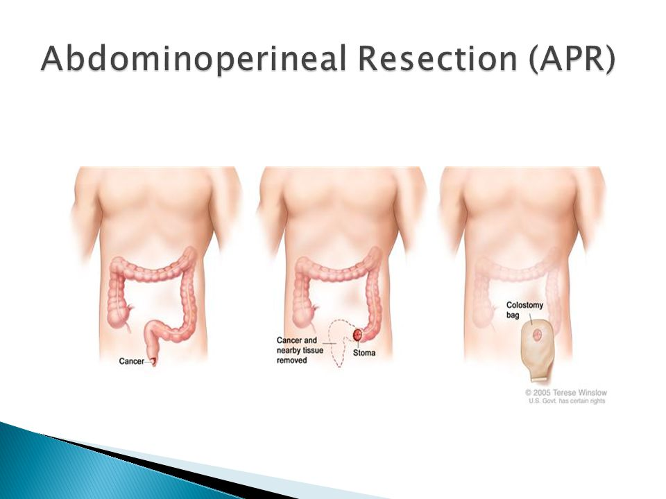 Abdominoperineal Resection (APR)