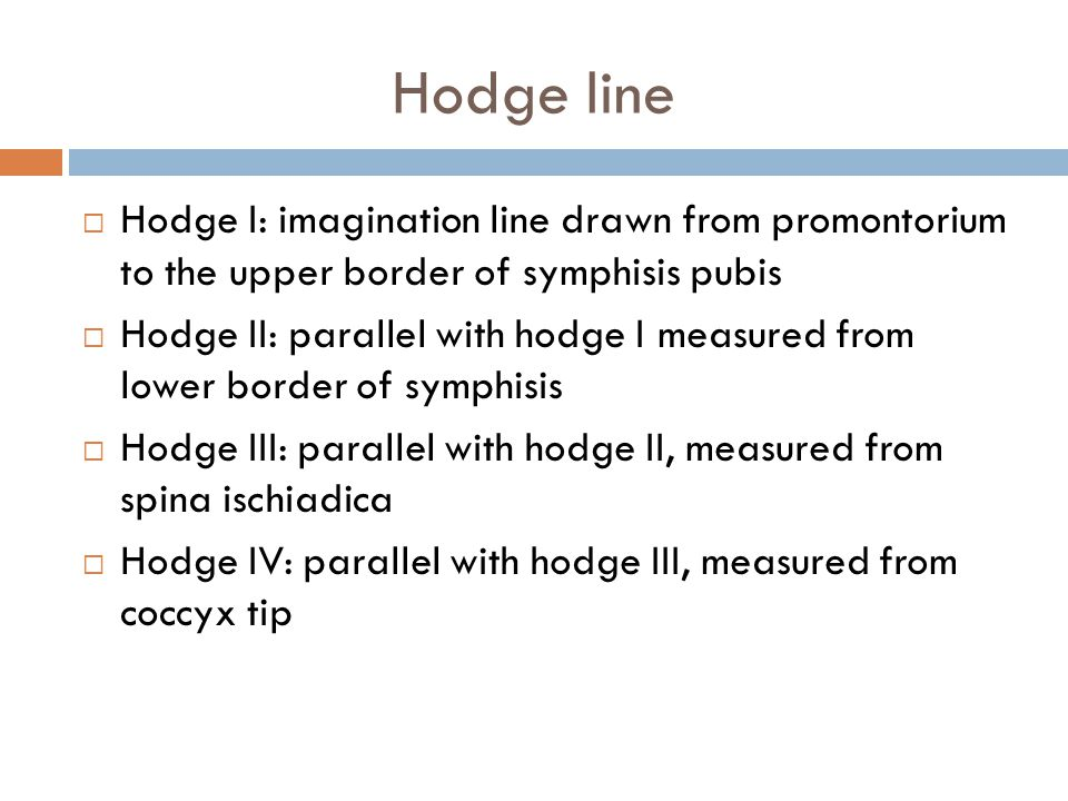 Hodge line Hodge I: imagination line drawn from promontorium to the upper border of symphisis pubis.