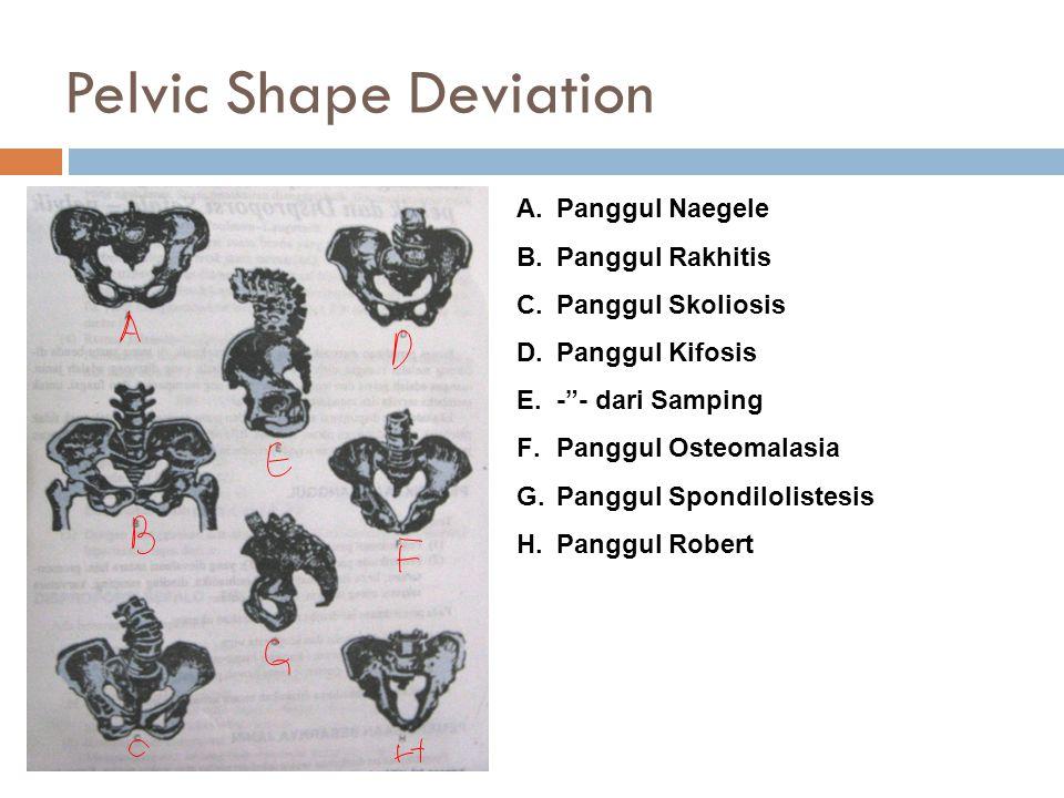 Pelvic Shape Deviation