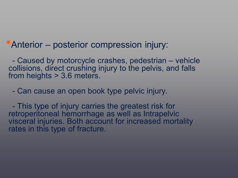 Anterior – posterior compression injury: