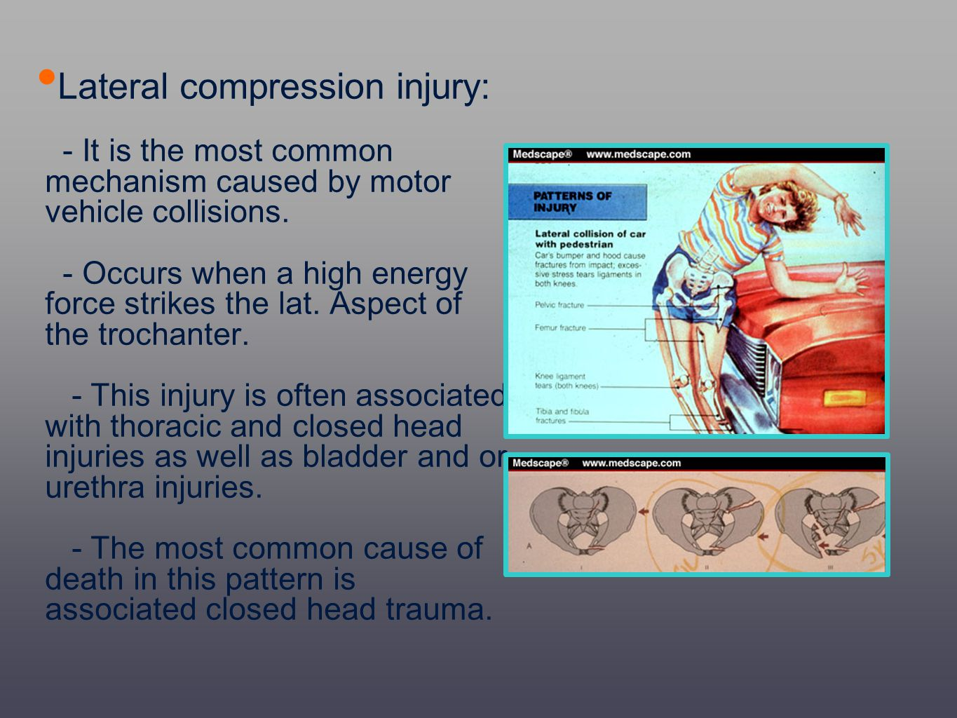 Lateral compression injury: