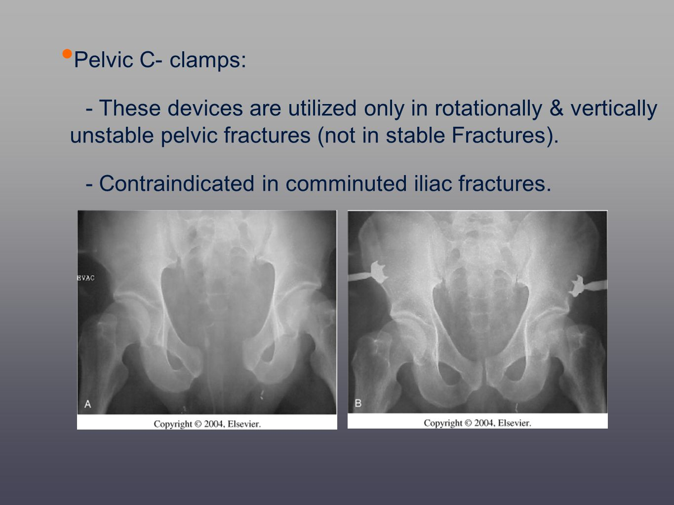 Pelvic C- clamps: - These devices are utilized only in rotationally & vertically unstable pelvic fractures (not in stable Fractures).