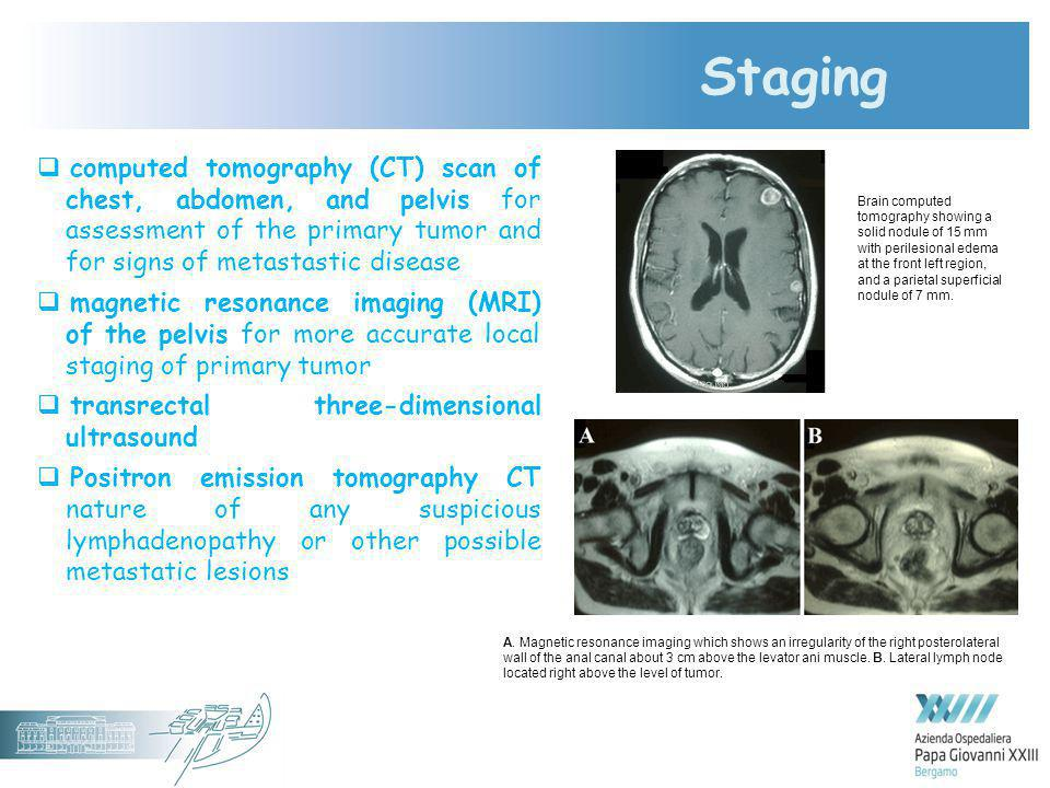 Staging computed tomography (CT) scan of chest, abdomen, and pelvis for assessment of the primary tumor and for signs of metastastic disease.